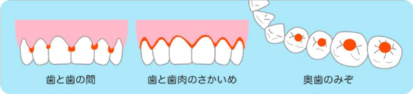 歯と歯の間、歯と歯茎の境目、奥歯の溝