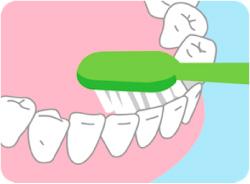 前歯の内側の磨き方図解1