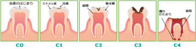 虫歯の進行具合