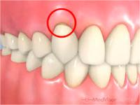 歯周病のイラスト
